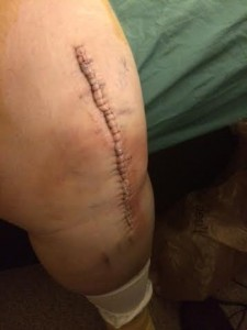 Knee staples